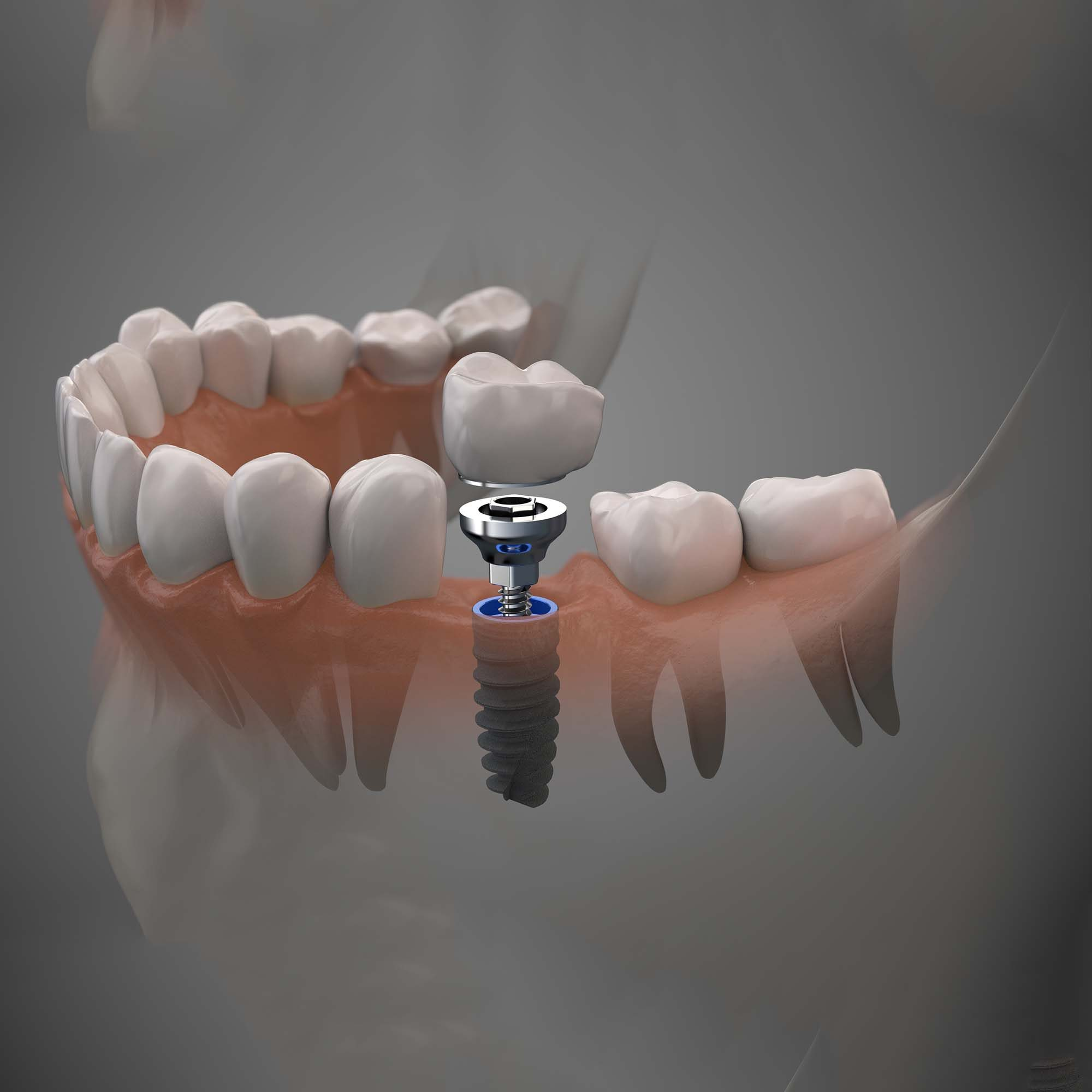 Close up of a Dental  implant model. Selective focus.